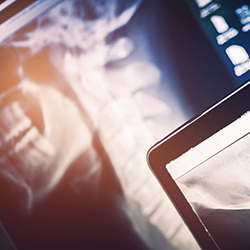 Xrays and digital imaging at Premier Chiropractic Center